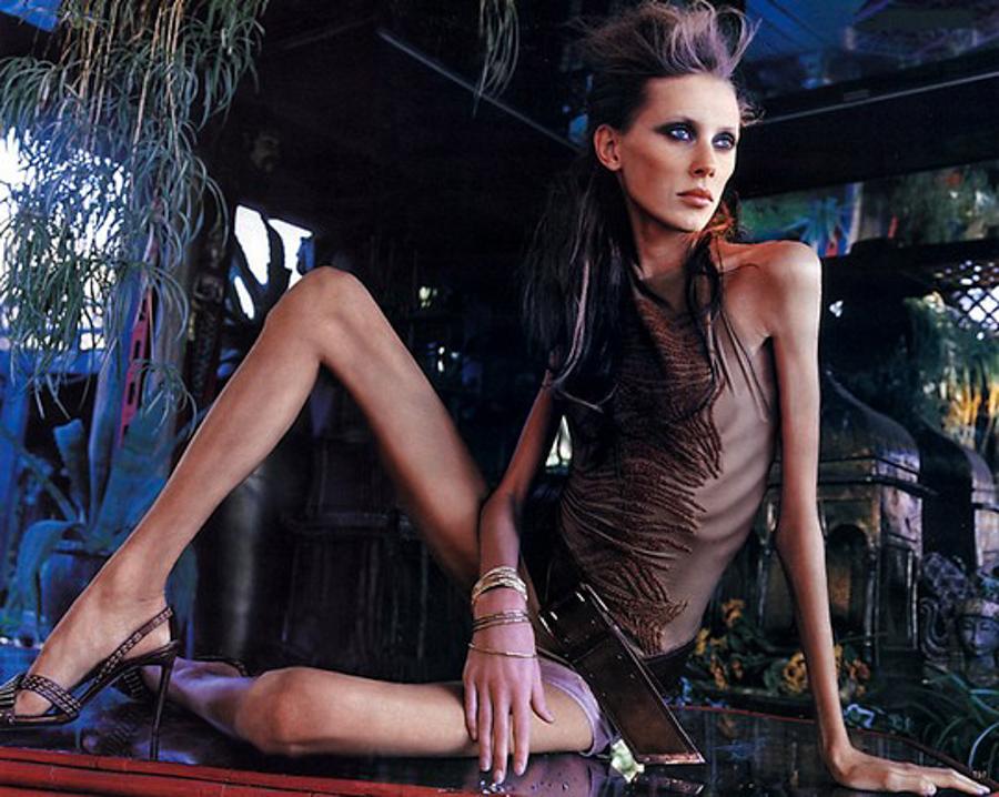 France Bans Super-Skinny Models